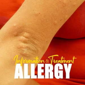 Allergy Information: Knowing Anaphylaxis and its Treatment