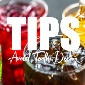 10 Tips To Avoid Tooth Decay