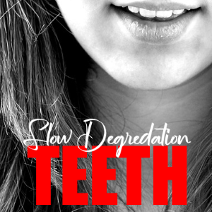Slow Degredation Of Your Teeth