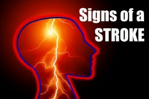 Signs of Silent Stroke